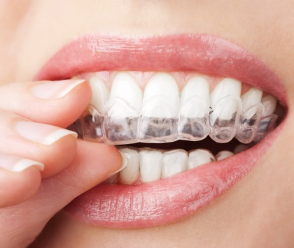 img use invisalign 2