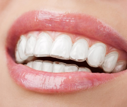 img use invisalign 3